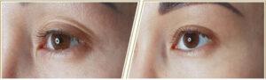 Lidas Beauty + Care, Gesichtsbehandlung, Spezialbehandlung, Plasmaliner, vorher - nachher